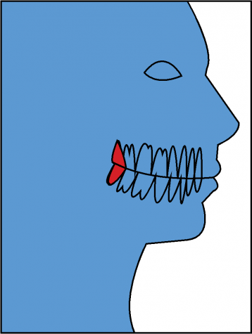 Wisdom teeth: Painful, glorious, necessary